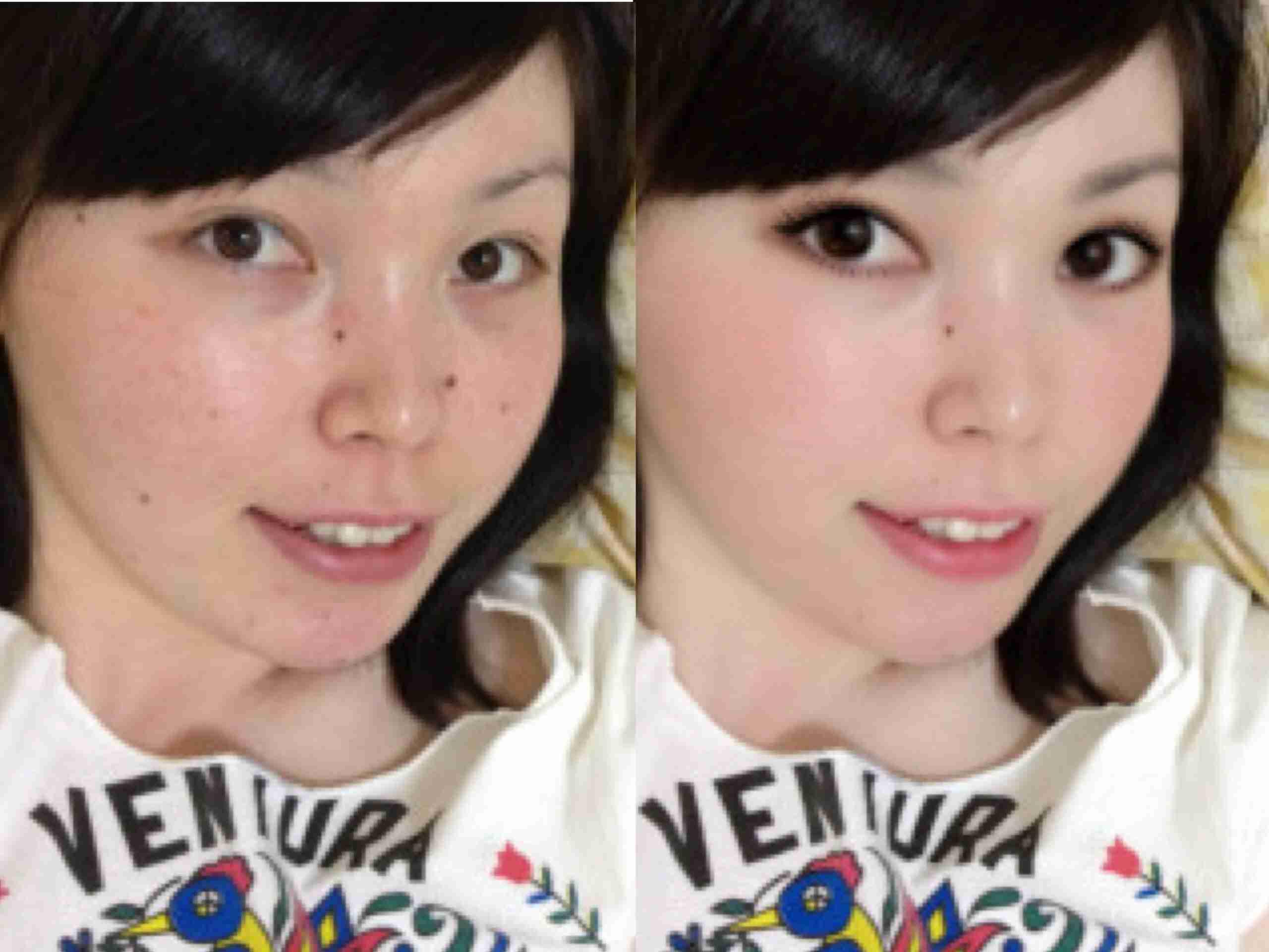 尼神インター・誠子「1億円でも顔の整形は嫌」「この顔好き」