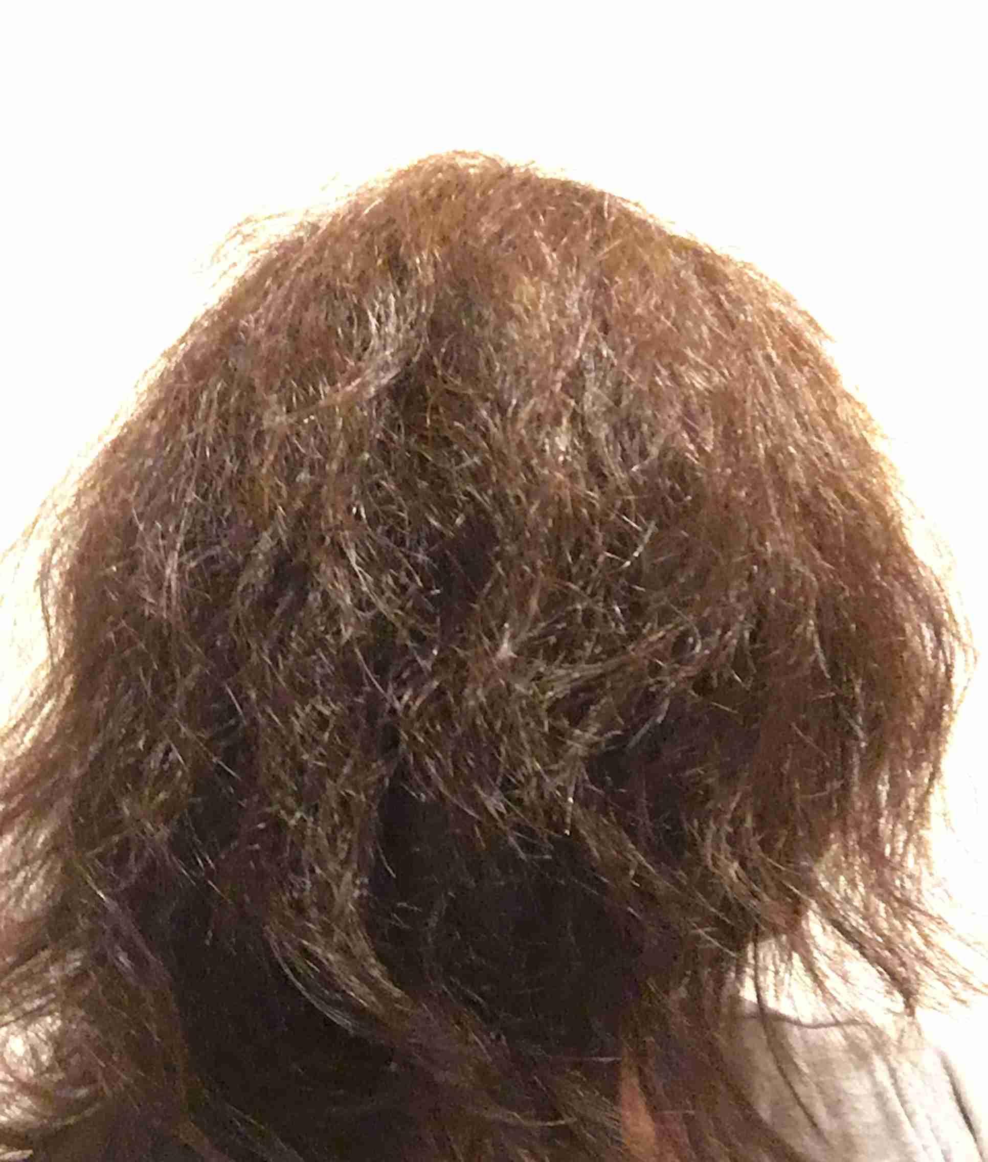 くせ毛、天然パーマでよかったと思うことありますか?