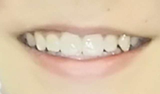 幼児の歯科矯正