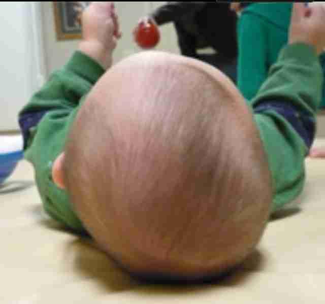 赤ちゃんの頭の形でお悩みの方