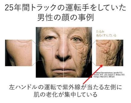 老化が止まらない(対策を教えてください)