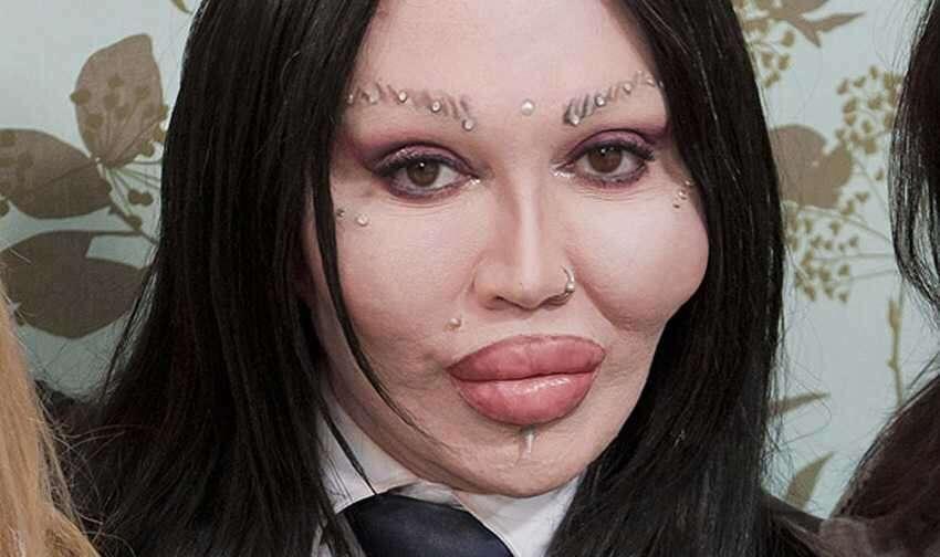 「整形美女のシンボルになりたい」1,600万円超かけたトランスジェンダーの女性(独)