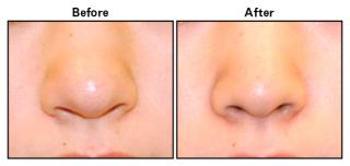 鼻の整形について