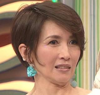 木下優樹菜 ボトックス注入やりすぎ「ヤベえ」芸能人いる…表情変わらない