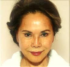 顔のたるみ改善法