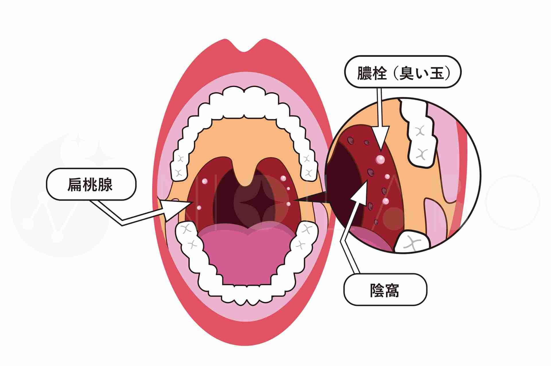 【+-】ガルちゃん何でも質問トピpart7【二択】