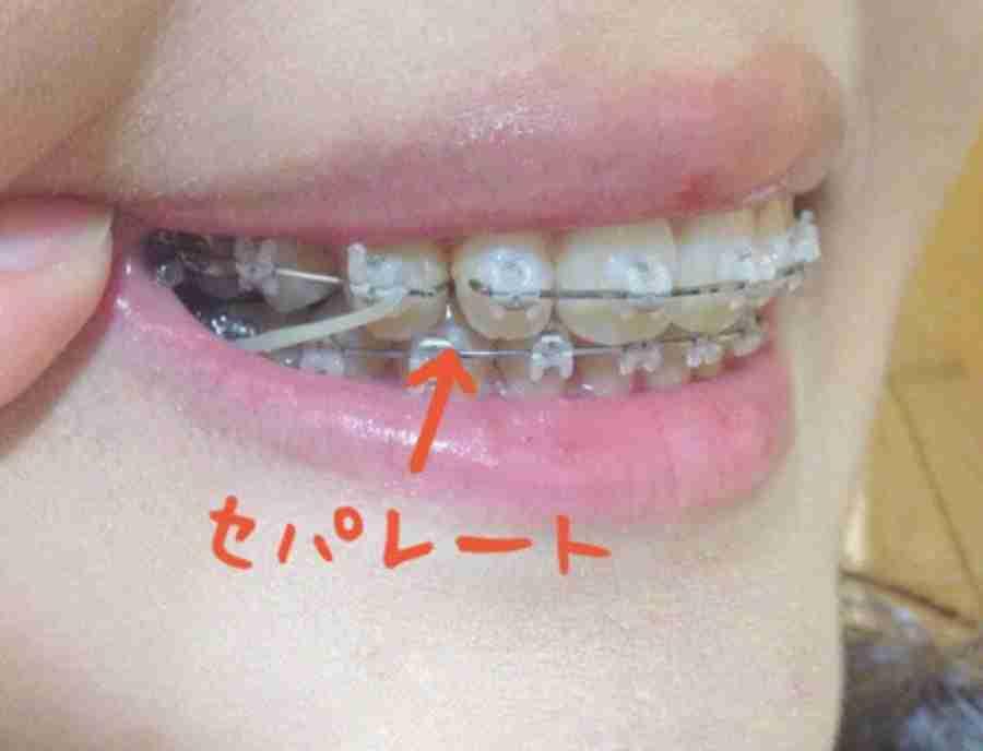 歯列矯正あるある