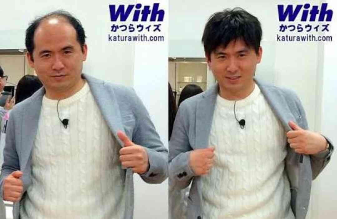 トレンディエンジェル斎藤司がパパに 第1子誕生「親の仇か、というくらい毛がフサフサです!」
