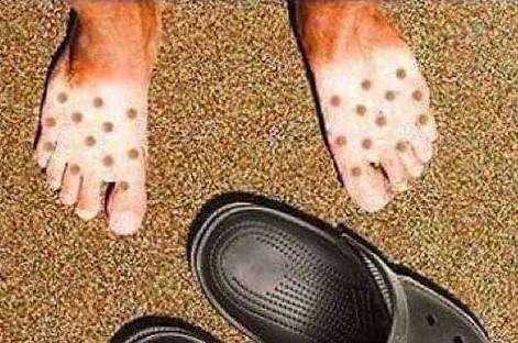 crocsを履いてくる彼氏