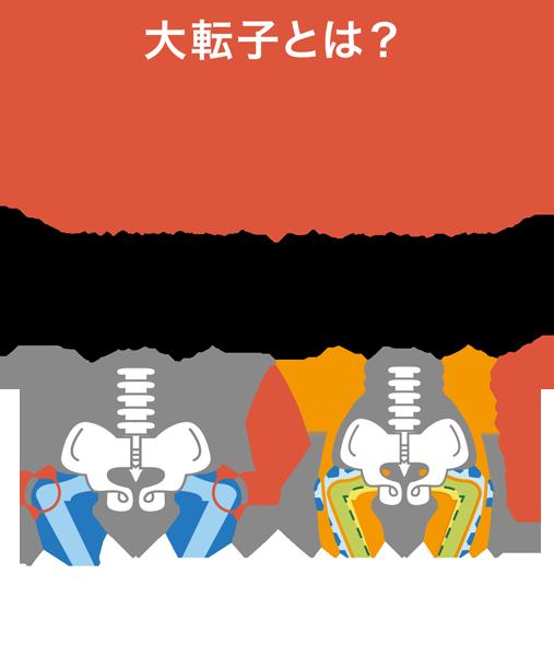 骨盤が大きい体型がコンプレックス