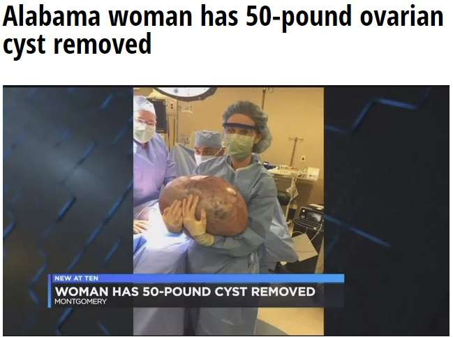 「妊娠中?」「痩せなきゃ」と言われ続けた女性 23キロの卵巣嚢腫を摘出(米)