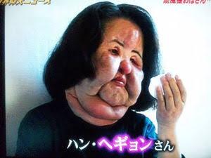 【画像】ヒアルロン酸注入でパンパン顔の人