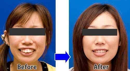 歯列矯正は整形か?