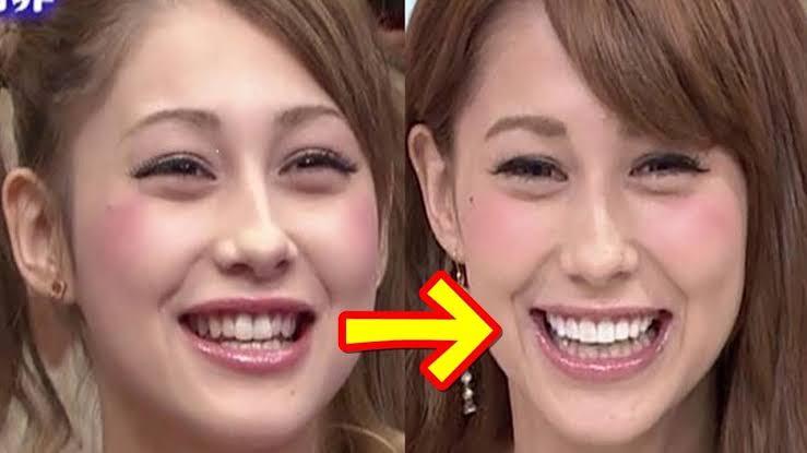 不自然な歯だと思う有名人PART2
