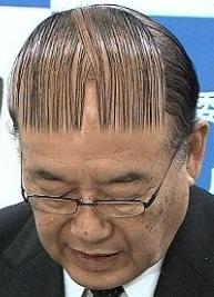 髪の毛の悩み事