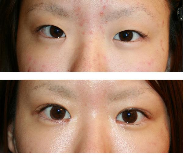 乃木坂46若月佑美、整形疑惑を説明 手術を認めるも失明の危険があったため