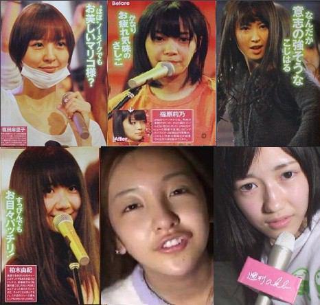 AKB48小嶋陽菜のスッピンがヤバイww