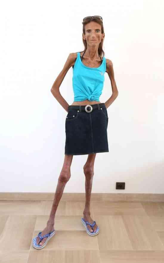 ダイエットしすぎて身長172cmの女性が体重25kgになった姿をご覧下さい。