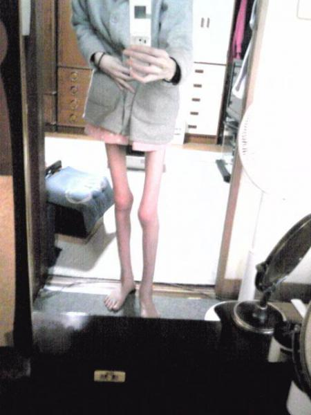 【画像あり】 摂食障害の女性のブログが衝撃的すぎると話題に 痩せすぎワロタ…ワロタ… | ニュース2ちゃんねる