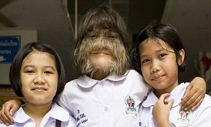 Supatra Sasuphan hairiest girl: 'Wolf child' says Ambras syndrome makes her popular  | Mail Online