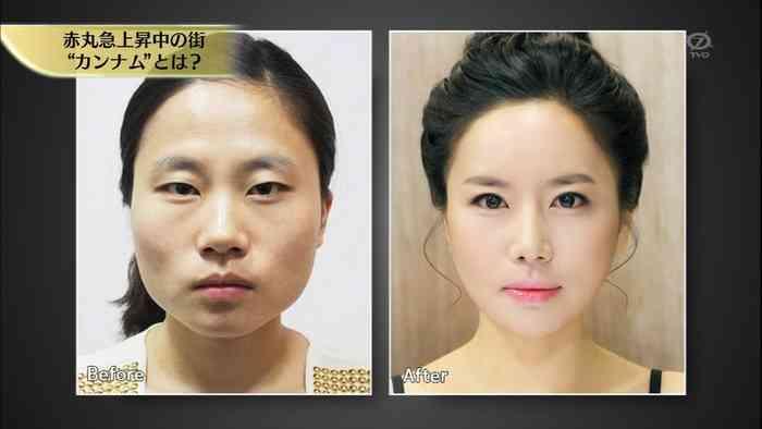 韓国人の整形っぷりをテレビ東京が放送www日本よ、これが韓国人だ!