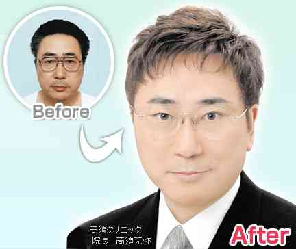 高須クリニック・高須幹弥、AKB岩田華怜の整形疑惑に言及「不自然に鼻先だけつままれたよう」「修正してあげたい」