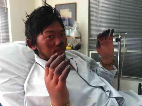 【閲覧注意】凍傷の切断治療を拒否している登山家・栗城史多さんの症状が酷くなって見える件