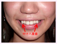 In Japan, There's a Trend to Make Straight Teeth Crooked: Are You Attracted to Physical Imperfections?