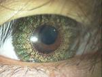 ある奈良県の眼科医が目について書いたブログ : 安全