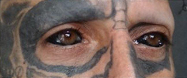 【閲覧注意】目玉にタトゥーを入れた人たち((((;゚Д゚)))