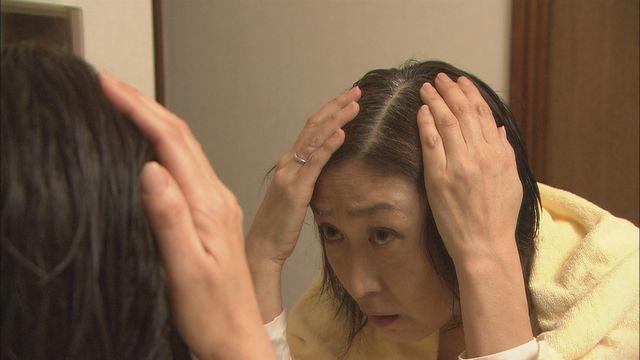 薄毛の悩み…