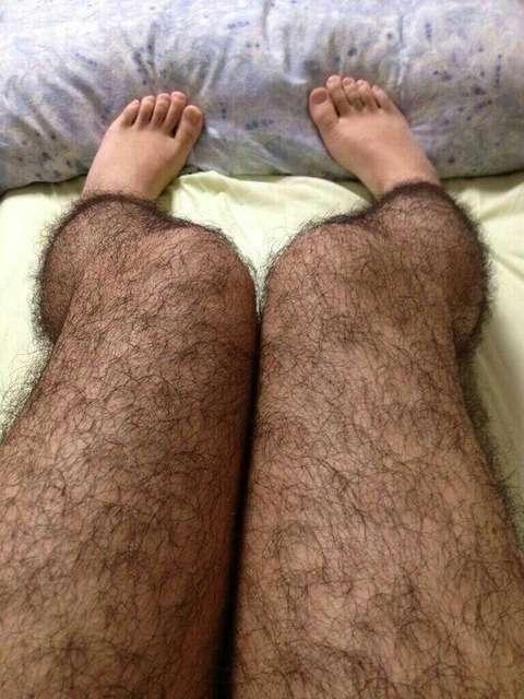 【悲報】俺の脚が猿みたいwwwww(閲覧注意) : すごいや速報