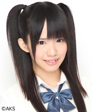 高須幹弥氏「SKE48松村香織さんの薄毛治療を引き受けることになりました。想像以上の重症です」