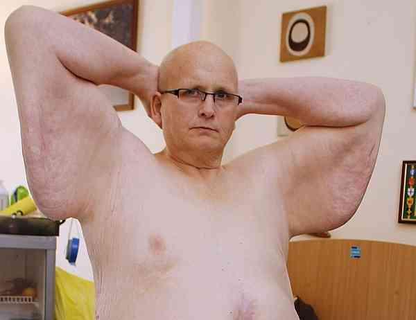【閲覧注意】445キロから153キロに減量した男性の体が恐すぎる