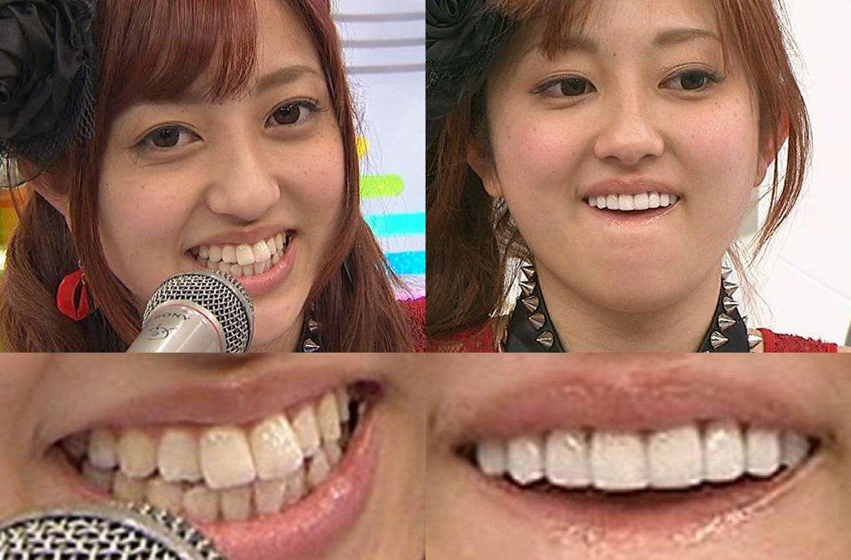 高橋真麻の上下の歯の違いww