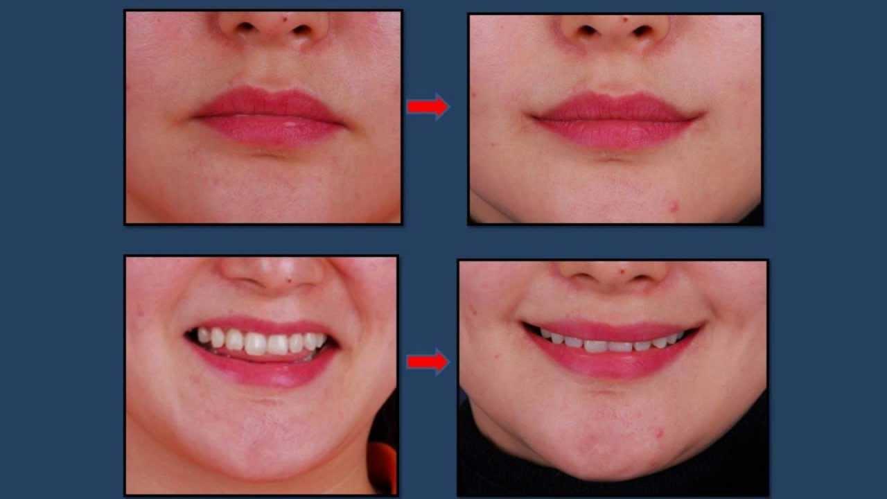 [Eng.Ver.] Korean Plastic Surgery: Mouth corner lift - Smile Lipt - YouTube