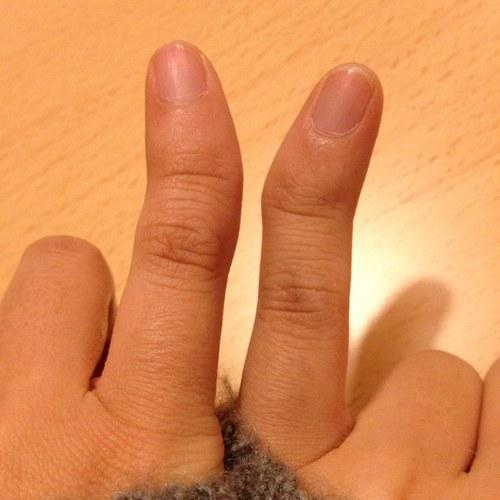 【恐怖】市役所職員が「殺すぞ。指つめろ」と男性を脅迫し、小指を切断させる事件が発生!