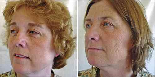 タバコが肌の老化を促進させていると良く判る一枚の写真|| ^^ |秒刊SUNDAY