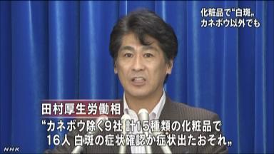 カネボウ以外の9社でも白斑か NHKニュース  カネボウ以外の9社でも白斑か NHKニュース w