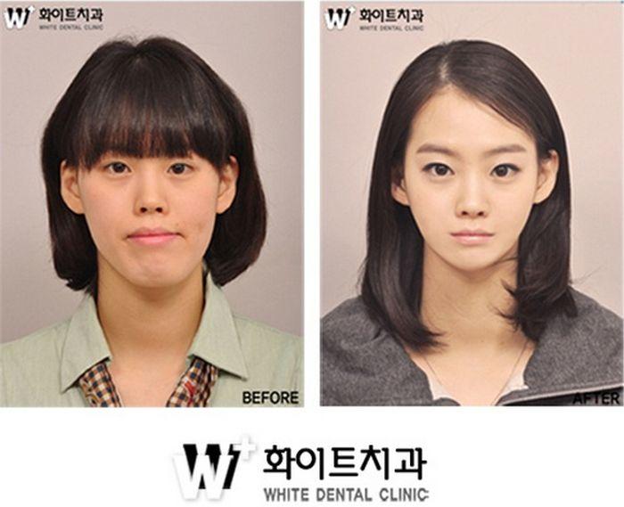 韓国の女性の整形ビフォーアフターがもはや原型を留めてない…