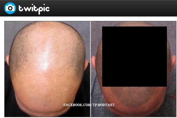 薄毛隠し用のタトゥがなかなか見分けつかないと絶賛|| ^^ |秒刊SUNDAY