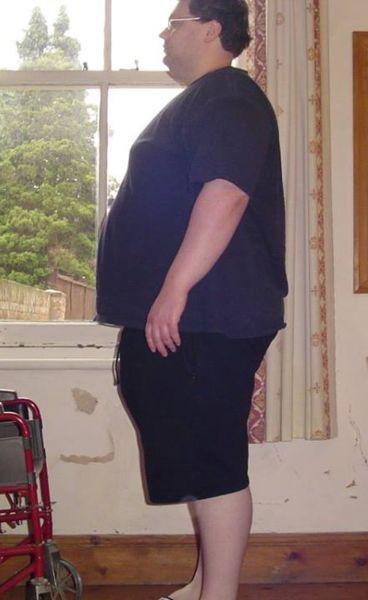 31歳、210kgの肥満男性が96kgまでダイエットした結果…