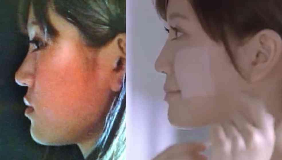 前田敦子の横顔が違う?