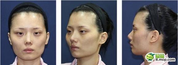 【閲覧注意】韓国で整形した女性の「美しくなるまでの過程」を記録した写真がスゴい
