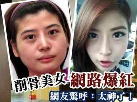 骨削りの整形手術で小顔を手に入れた26歳女性、整形の過程を公開しネット驚愕