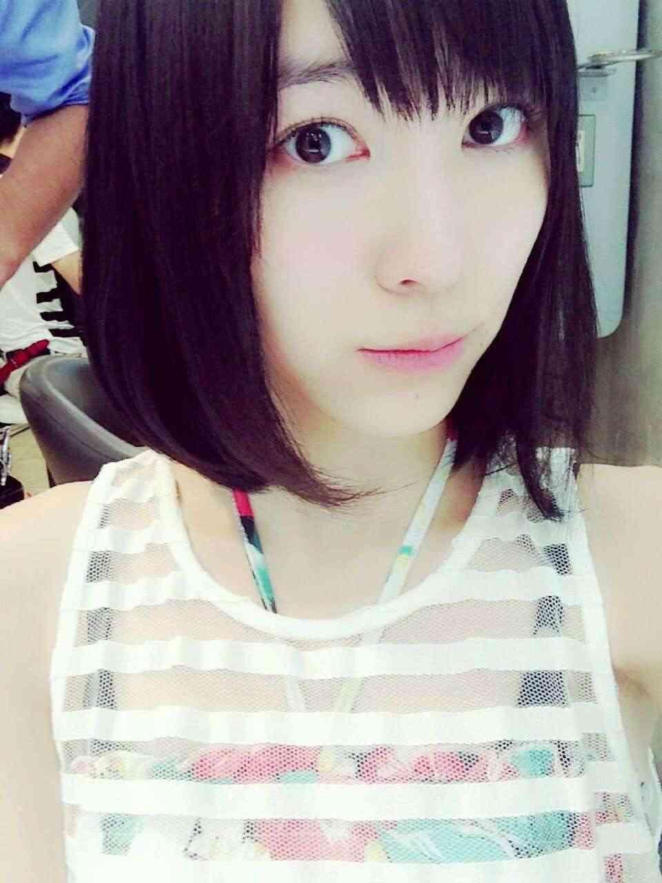 SKE48松井珠理奈の目に整形疑惑…回復して眼帯を取った顔画像が前と違うと話題に