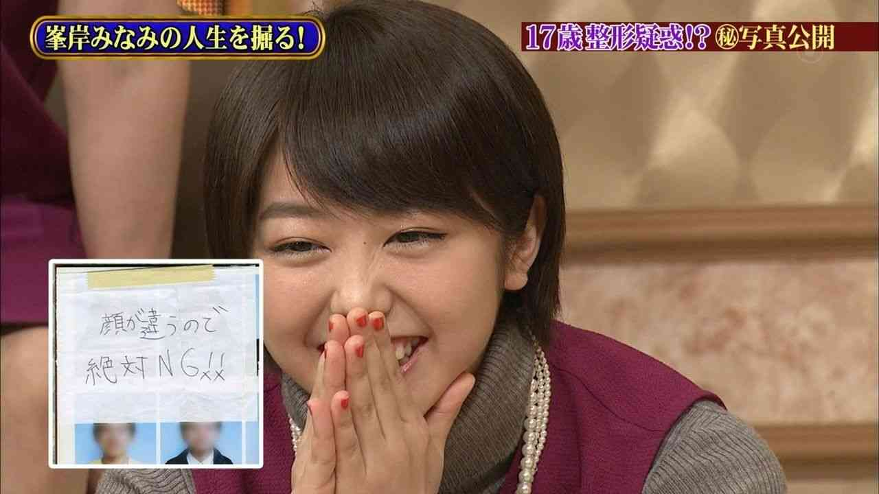 "AKB48峯岸みなみ、整形疑惑にコメント""絶対NG""の写真公開で拍車"