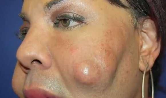 【閲覧注意】無免許のヤミ医者に美容整形施術を依頼して「セメント顔」と呼ばれるようになった女性が話題