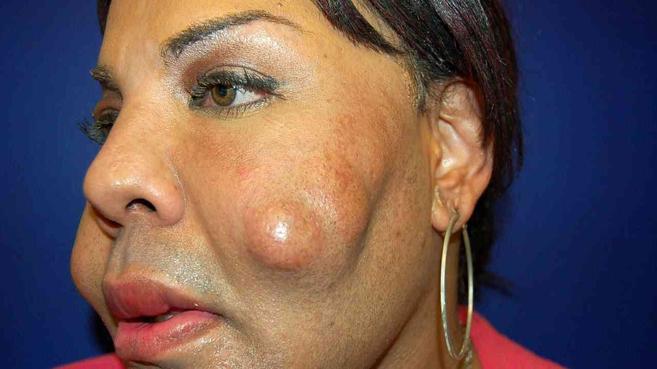Cosmetic Surgery Disaster: Woman Dubbed 'Cement Face' Given New Lease Of Life - YouTube