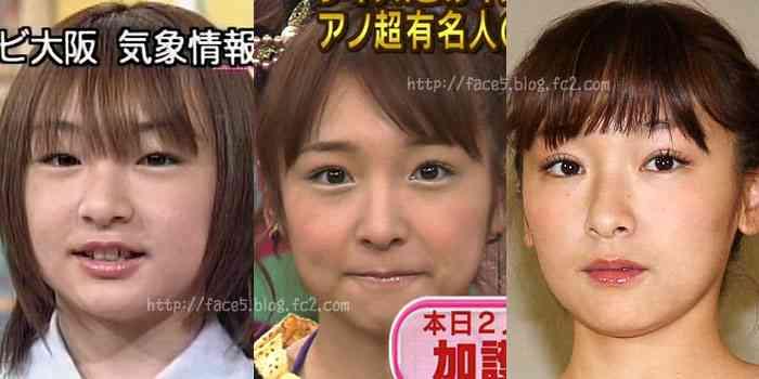 加護亜依の顔がまた変わってると話題に…